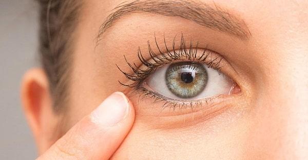 Worki pod oczami są objawem zatrzymywania wody w organizmie
