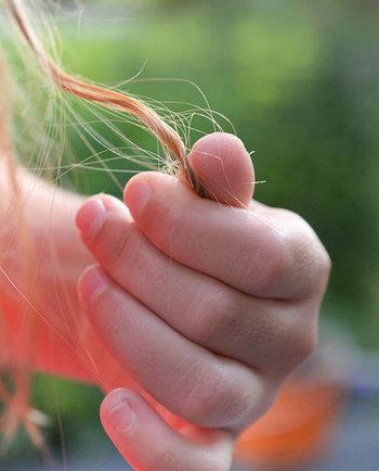 Wypadanie włosów – przyczyny, diagnoza, skuteczne leczenie