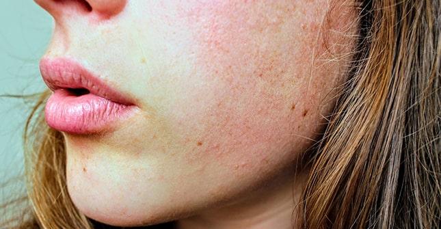 Trądzik różowaty charakteryzuje się trwałym zaczerwienieniem skóry i poszerzonymi naczynkami
