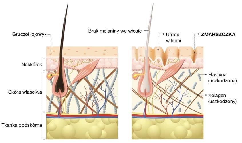 Zmarszczka powstaje z wiekiem wskutek utraty kolagenu w skórze, który daje jej podparcie