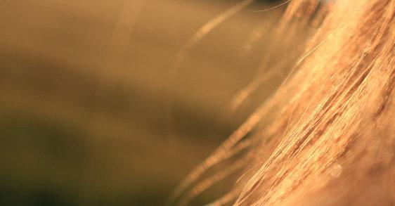 Łysienie telogenowe – dlaczego głównie dotyczy kobiet?