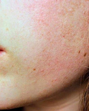 Czy skóra tłusta może ulec przesuszeniu?