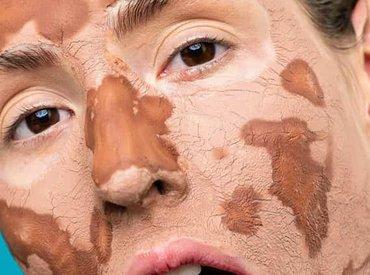 Przesuszona skóra – czym różni się od suchej?