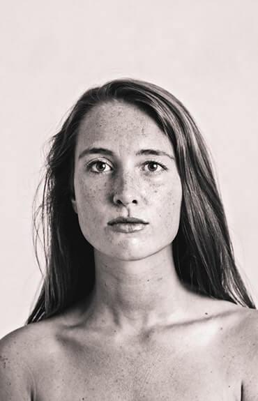Kropki na ciele mogą mieć wiele przyczyn. Od uczulenia poprze zmiany pigmentacyjne aż po poważne choroby.