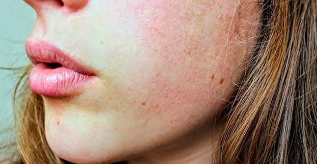 Nawet tłusta skóra może okresowo ulec przesuszeniu