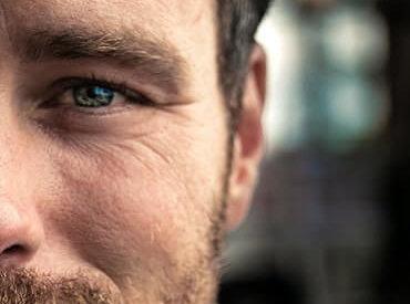 Sposób na zakola – jak radzić sobie z łysieniem u mężczyzn?