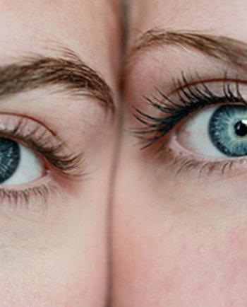 Zmarszczki pod oczami oraz jak starzeje się skóra wokół oczu
