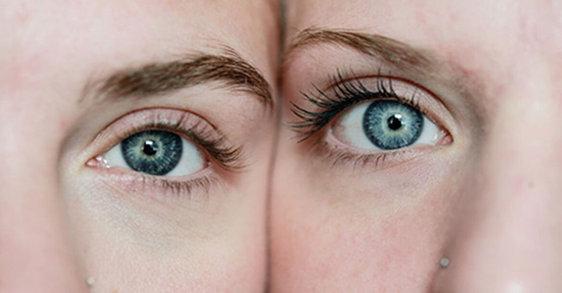 Zmarszczki pod oczami oraz jak starzeje się skóra wokół oczu.
