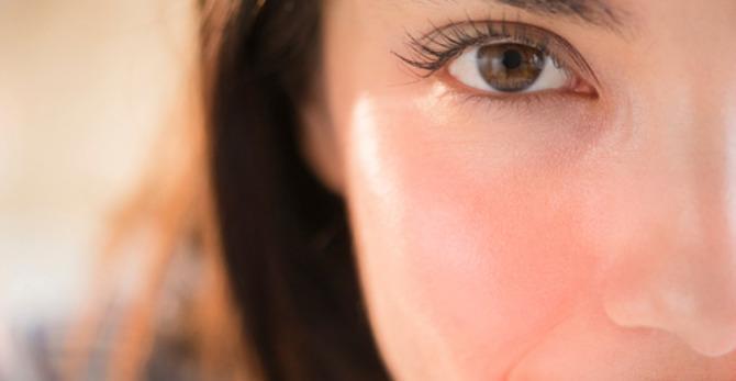 Łuszcząca się skóra na twarzy jednym z objawów przesuszonej skóry twarzy - jak nawilżyć skórę?