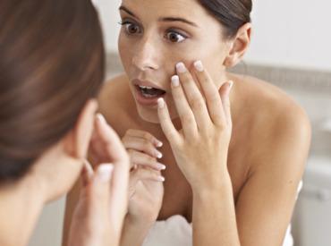 Pieczenie skóry twarzy - przyczyny, sposoby pielęgnacji