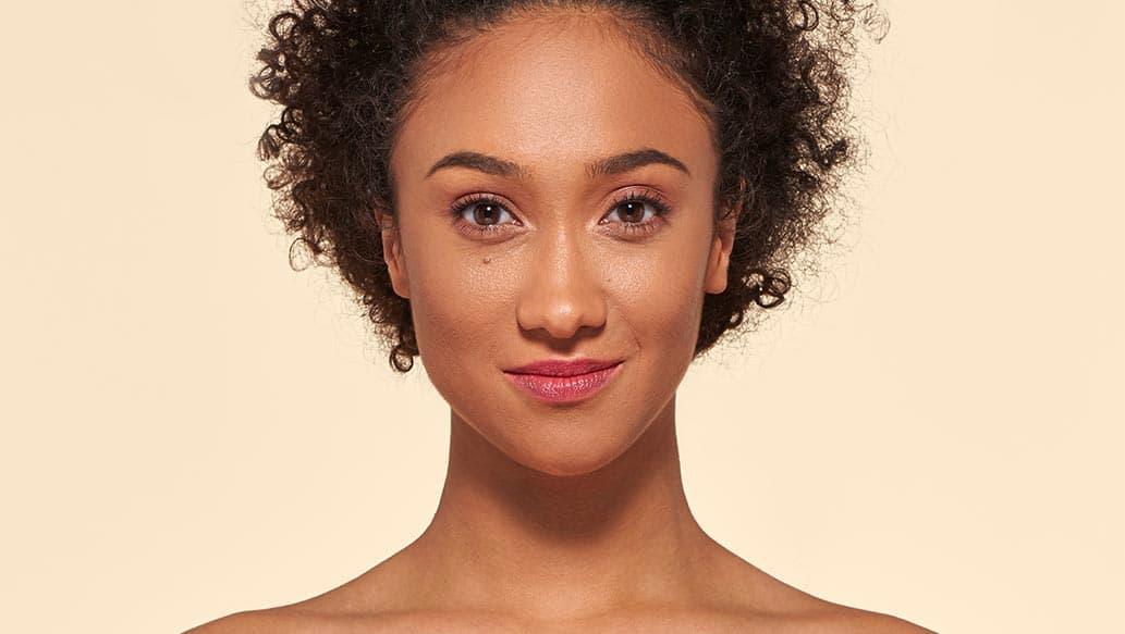 v_after-vitiligo_v2.jpg