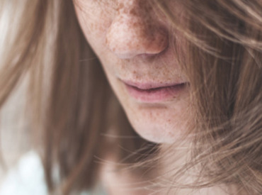 Brak witamin a wypadanie włosów – sprawdź, jak je wzmocnić!
