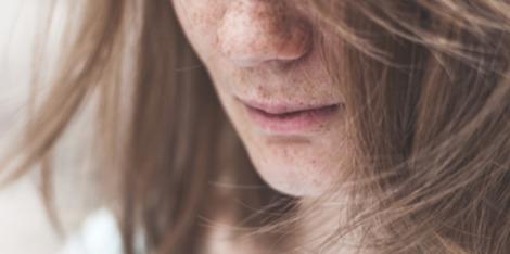 Brak witamin a wypadanie włosów - sprawdź jak wzmocnić swój organizm!