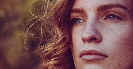 Krosty na twarzy – skąd się biorą i jak się ich pozbyć?